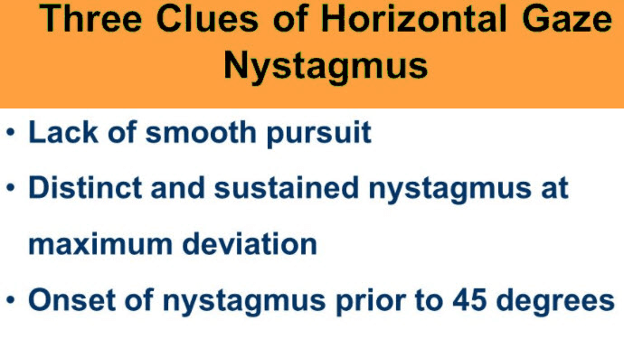 Horizontal Gaze Nystagmus