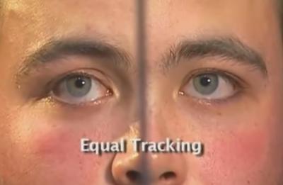 HGN Eye Test